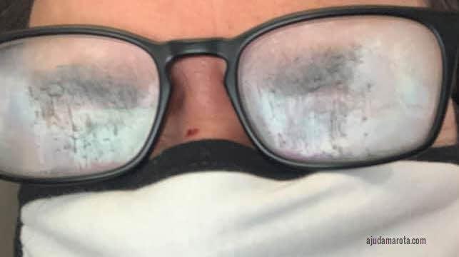 O que fazer para óculos não embaçar quando usar máscara